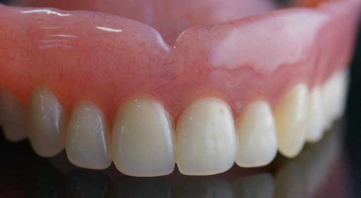 The Ten Commandments Of All On Dental Implants Cost Mexico